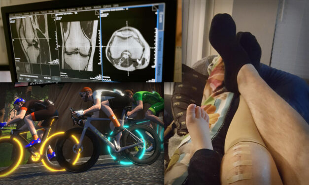 An Active Approach to Cycling Injuries: Total Knee Replacement